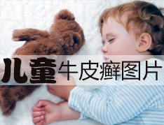 儿童牛皮癣患者日常注意事项