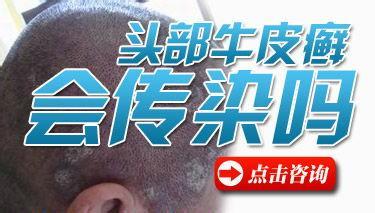 专家谈牛皮癣会传染吗?