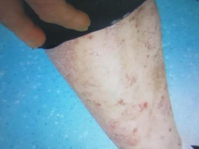 牛皮癣患者皮肤出现瘙痒怎么办