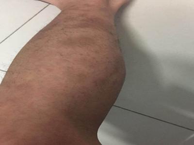 牛皮癣这个病有治疗护理方法吗